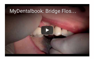 Mydentalbook_Bridge_floss_instructions.png